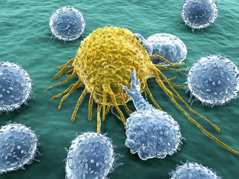 Krebszelle und Lymphozyten