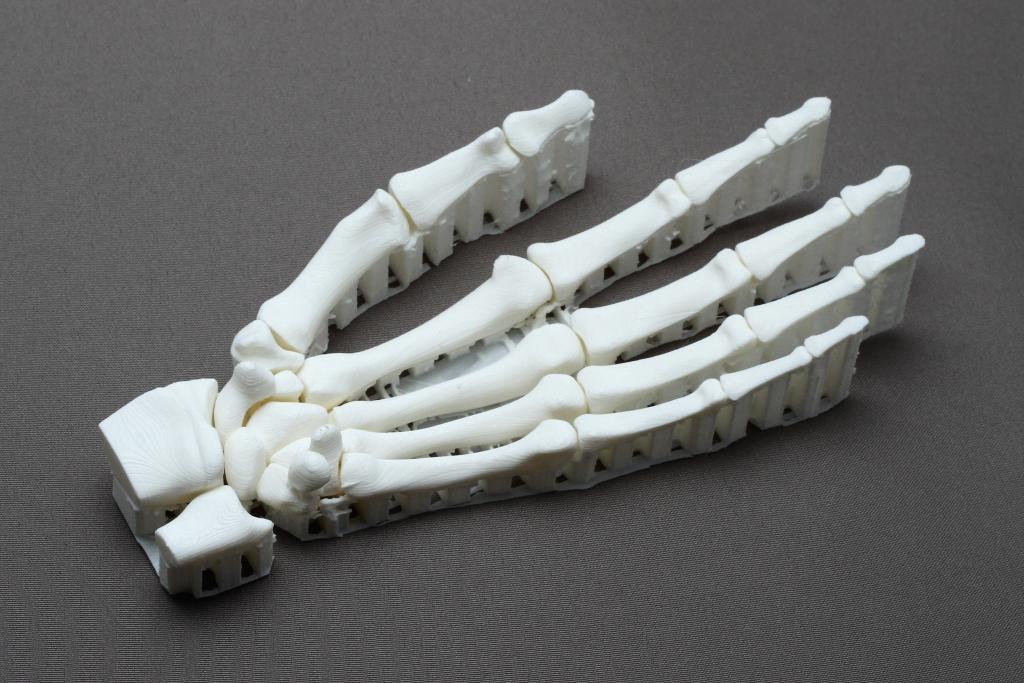 Anatomisches Handmodell im 3D-Druck zur Ableitung für die Gestaltung einer individuellen Endoprothese.