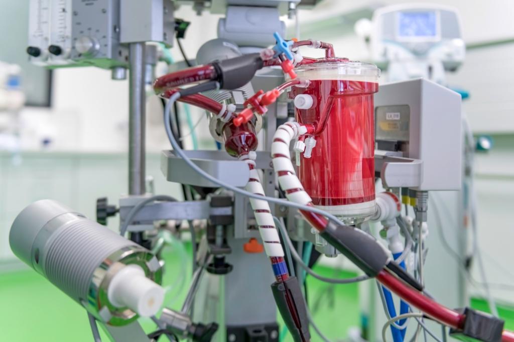 Bei schwerstem Lungenversagen kann das Blut nur noch mittels einer externen Maschine außerhalb des Körpers mit Sauerstoff angereichert werden. Dazu übernimmt der künstliche Kreislauf des ECMO-Gerätes die Funktion des Herzens und der Lunge.