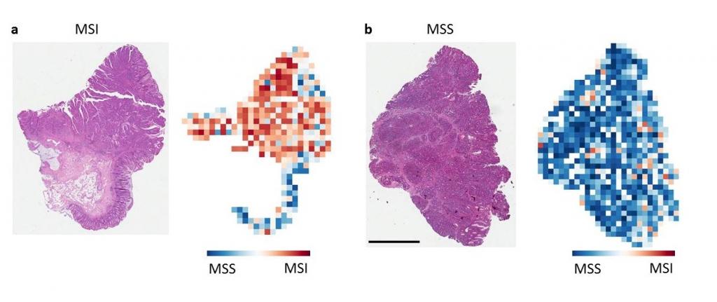 Gewebeschnitte von einem Mikrosatelliten-instabilen (MSI) Patienten (a) und einem Mikrosatelliten-stabilen (MSS)-Patienten.