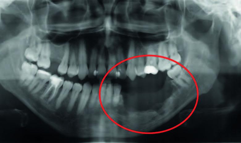 Röntgenbild eines vom Tumor zerstörten Unterkiefers. Das Knochensegment muss chirurgisch entfernt und durch ein Knochentransplantat ersetzt werden.