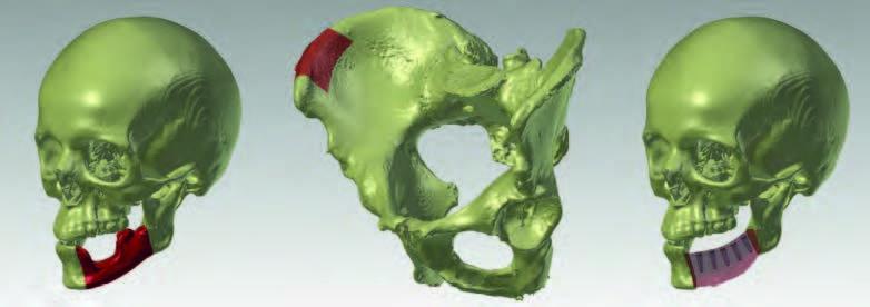 Virtuelles 3D-Modell eines Schädels mit Markierung des zu entfernenden Teils des Unterkiefers; b: Teilstück des Beckenkammes als Transplantat markiert; c: virtuell eingepasstes Transplantat am Kiefer mit der Planung von Implantaten für späteren Zahnersatz.
