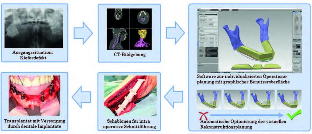 Ablauf einer Kieferrekonstruktion: Von der Bildgebung über die automatisierte virtuelle Planung und Optimierung des Rekonstruktionsvorschlages bis zur operativen Umsetzung.