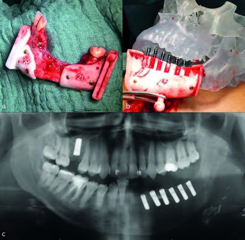 Bild a: Entnommener Anteil des Unterkiefers mit Operationsschablonen; b: Transplantat mit Operationsschablone am gedruckten Modell des Schädels; c: Röntgenbild des rekonstruierten Kiefers mit Transplantat und Versorgung mit dentalen Implantaten.