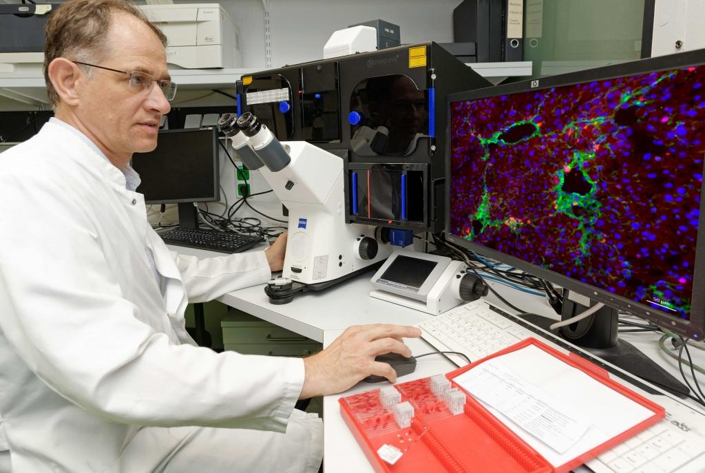 Fibroseforschung mit moderner Immunfluoreszenzmikroskopie. Spezifische Zellen und Moleküle können mit Fluoreszenzfarbstoffen angefärbt und im Fluoreszenzmikroskop sichtbar gemacht werden. Im vorliegenden Beispiel wurden aktivierte Hepatische Sternzellen einer fibrotischen Leber grün und alle Zellkerne blau gefärbt. Zusätzlich wurde hier ein Protein (in rot markiert) nachge-wiesen, welches normalerweise an Zellteilungsprozessen und Leberkrebsentstehung beteiligt ist. (Foto: Peter Winandy)