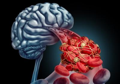 Blutgerinnsel im Gehirn
