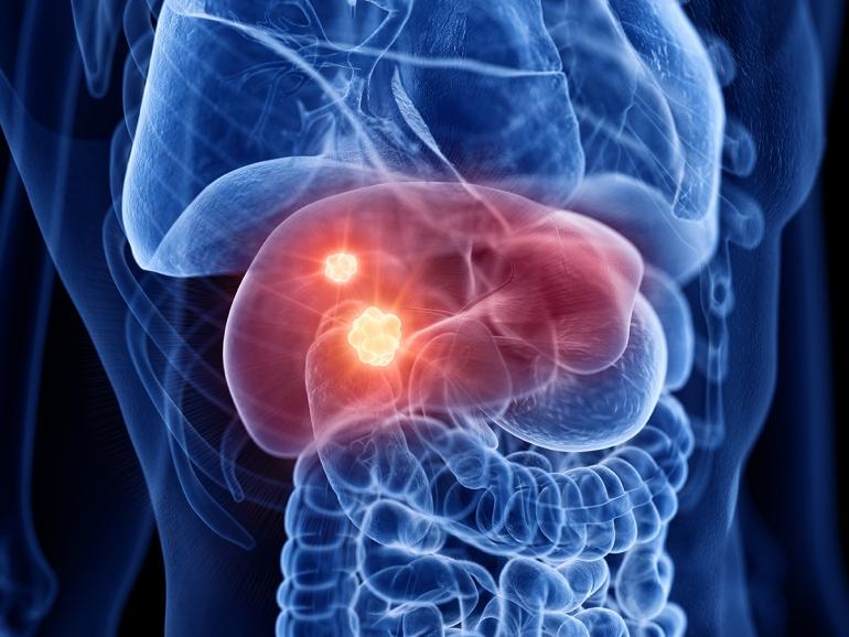 Krebs in der Leber